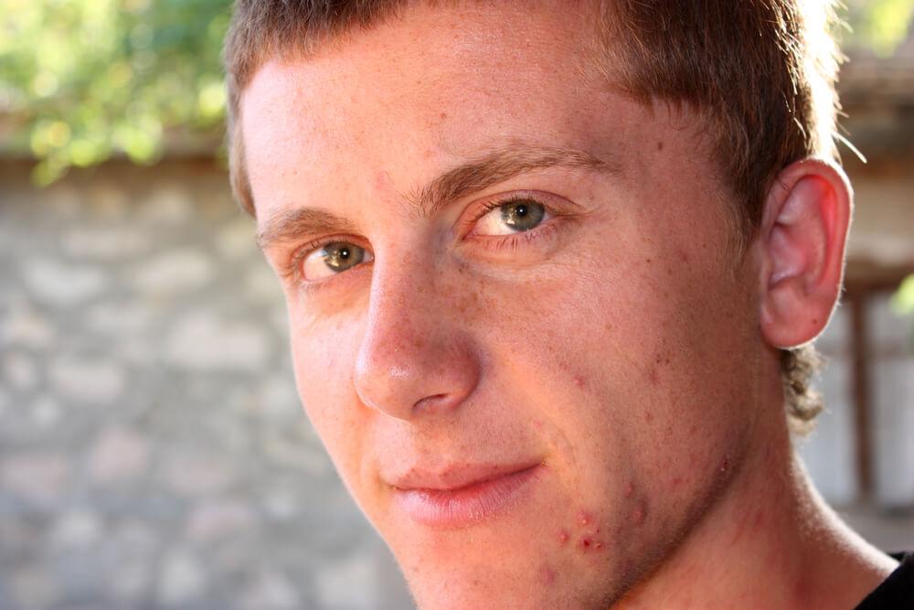 Addio acne giovanile e farmaci aggressivi! la storia di Matteo